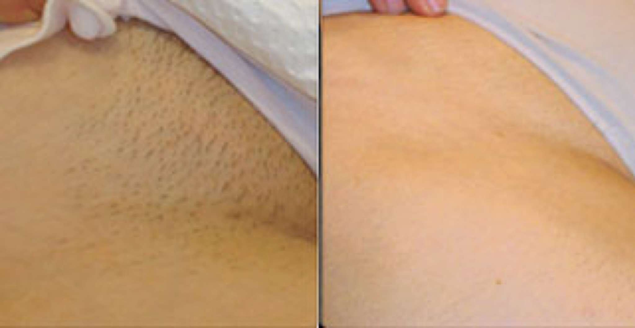 Buy After and Before full brazilian wax picture trends
