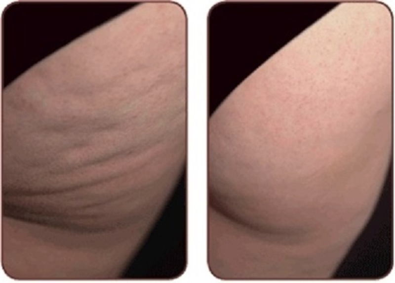 App 10578910 dyanna spa anti cellulite body treatment manhattan new york citysalon s
