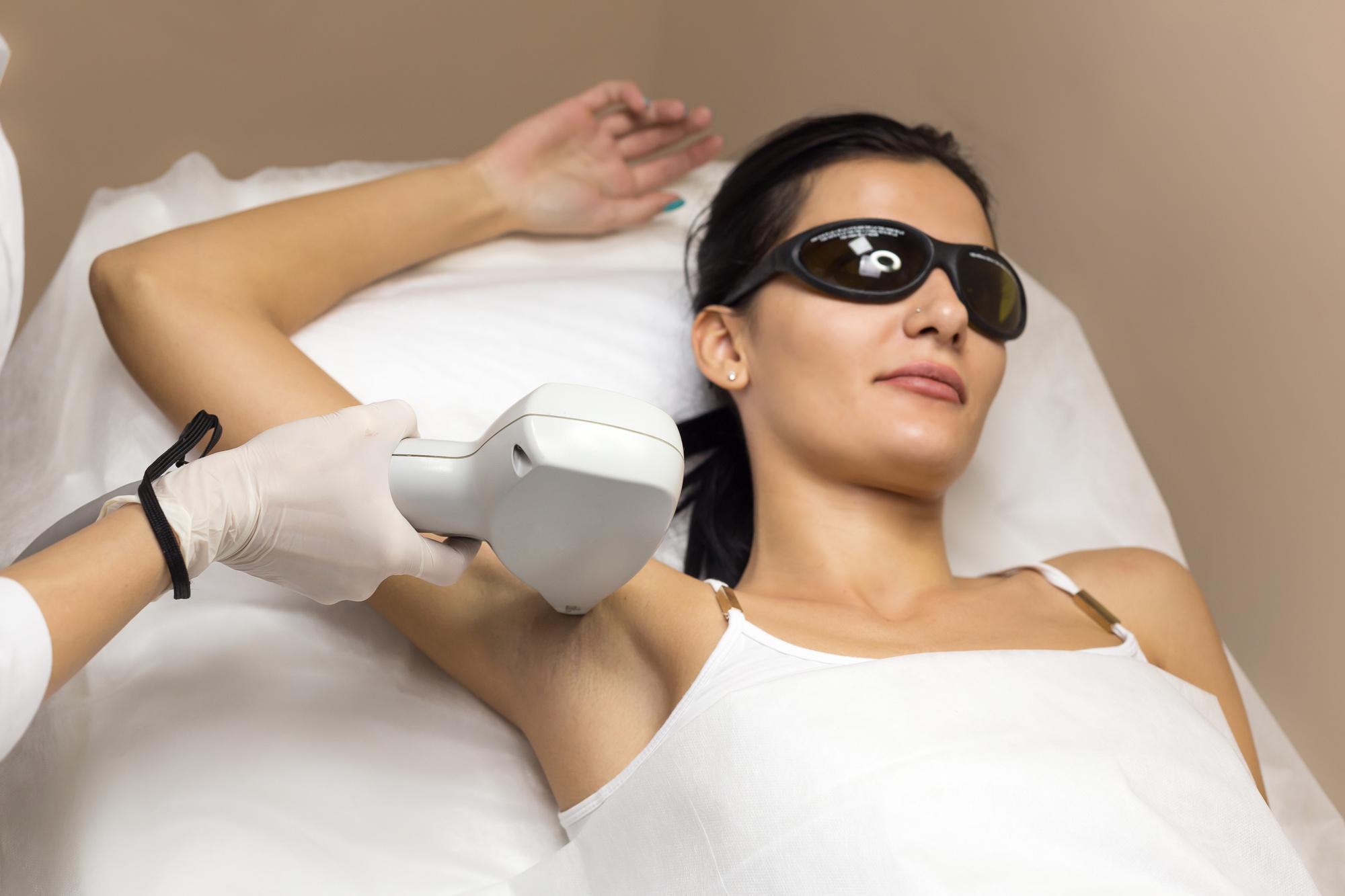 Laser hair removal underarm
