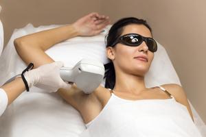 Social laser hair removal underarm