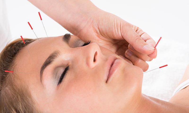 App facial acupuncture
