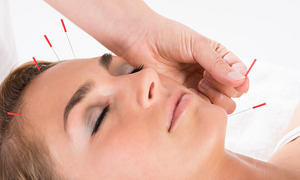 Social facial acupuncture