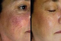 Small facial veins slide2
