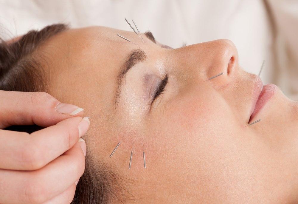 Bigstock woman receiving facial acupunc 24865028