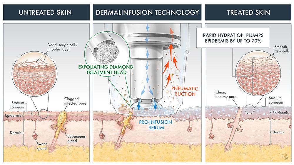 Dermalinfusion technology imageweb